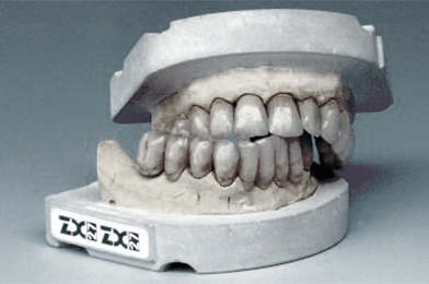 ZX-27 Attractive Glass Abutment System